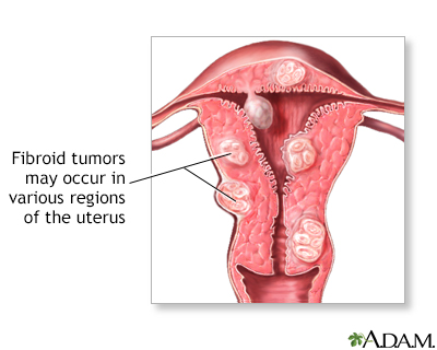 Fibroids Larger Than Uterus | Fibroids Treatment